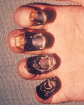 Gangrene Infection in Diabetes